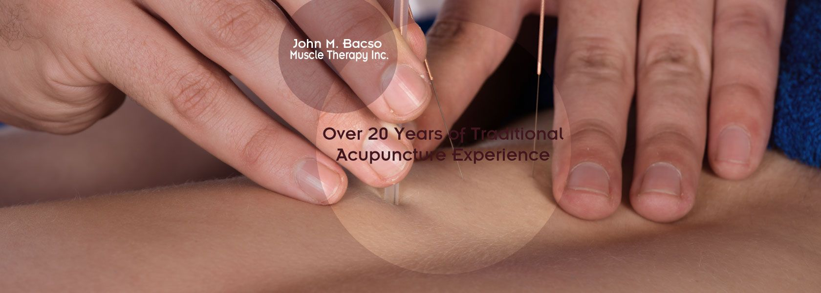 Over 20 years of traditional acupuncture experience | needles